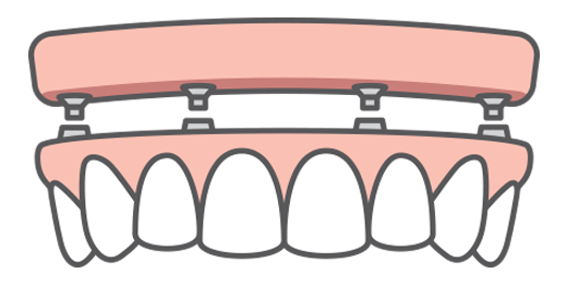 Illustration showing a full-arch denture being anchored to four dental implants that have been placed in a patient's jaw